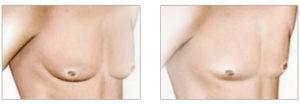 Gynécomastie seins