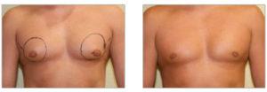 Gynécomastie seins-photo