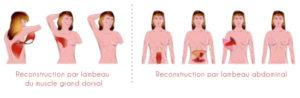 Cancer schéma
